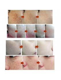 28 Days Pigment Face Whitening Cream Freckle Chloasma Cyasma Removal