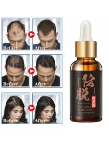 30ml Hair Growth Essence Preventing Hair Loss Hair Care Essential Treatment Liquid Hair Scalp Care