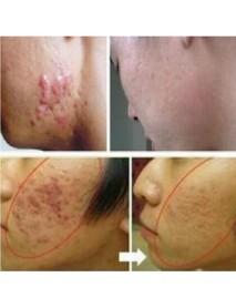 30g Acne Scar Removal Cream Skin Repair Cream Cream